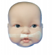 DynaCleft  Evidence based pre-surgical treatment of cleft lip, cleft palate and nasal deformity.