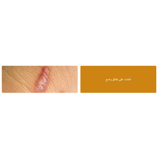 Strataderm is a rapidly drying, non-sticky, transparent, silicone gel formulation for the treatment of both old and new scars as well as abnormal scar prevention, in the form of hypertrophic scars and keloids.